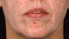 Acne -after-Courtsey of Canniesburn Hospital Close up after Acne pt 4