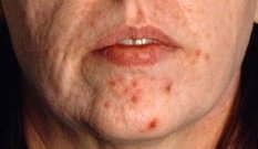 Acne- beforeCanniesburnAcne -Before Hospital Close up before Acne pt 4
