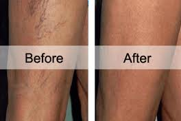 Before and after-leg veins-download