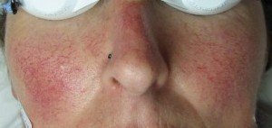 Courtesy of Laser Skin Solutions,vascular face crop before