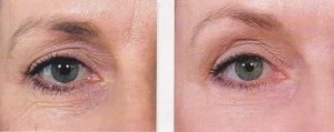 Image of Collagen Induction Therapy-Eyes