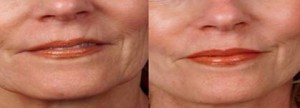 Induction of Collagen Therapy-Lips