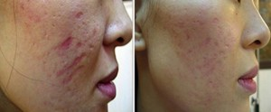 Induction of Collagen- bad scaring