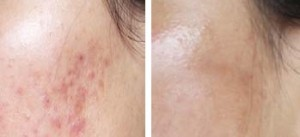 Induction of Collagen-scaring