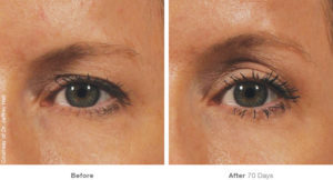 beforeafter_brow12 (1)