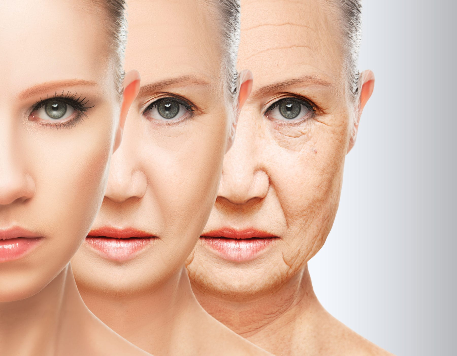 bigstock-Beauty-Concept-Skin-Aging-Ant-72208837_2